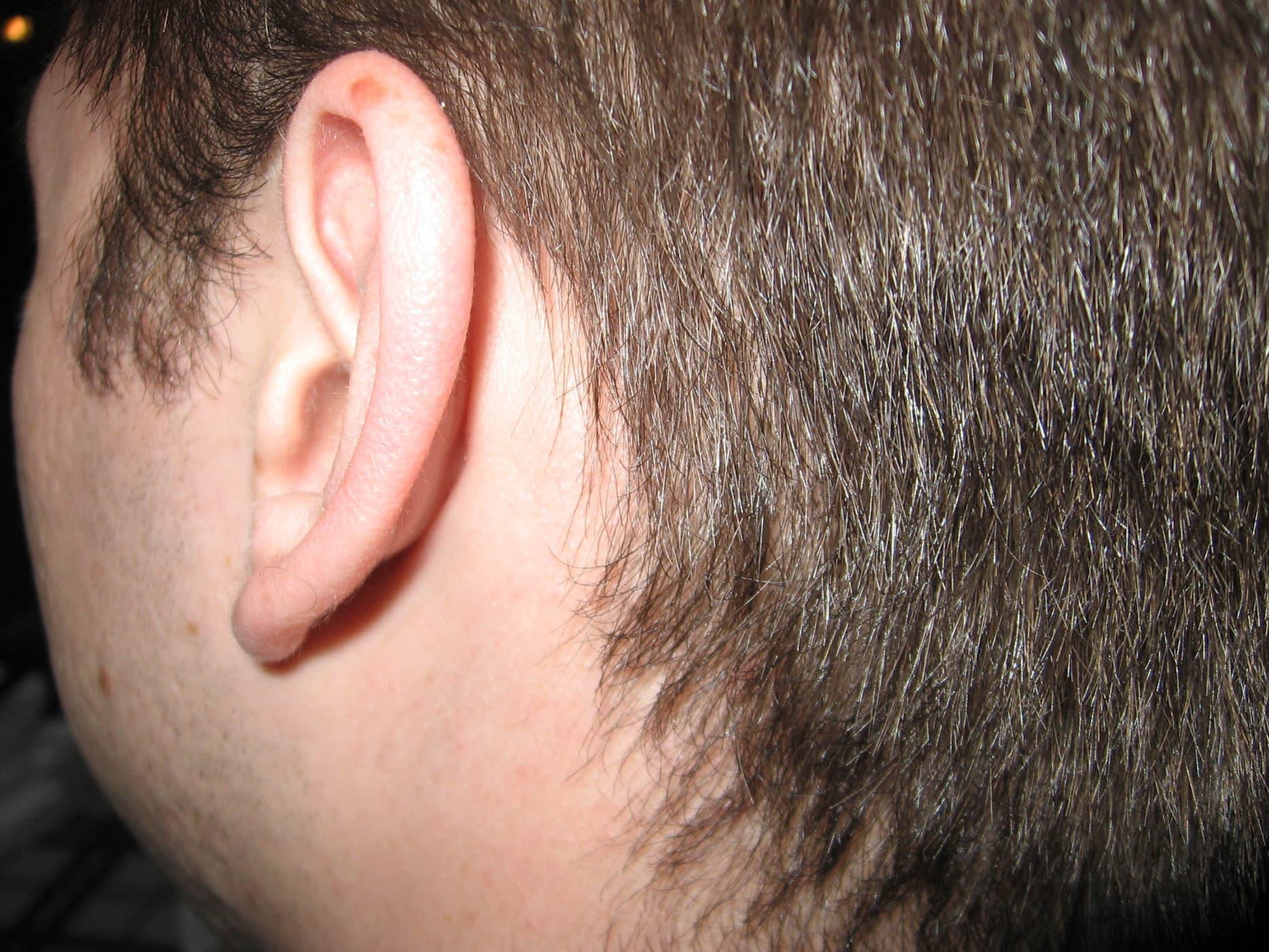 Closeup of Matt's ear  - Happy birthday Andy!