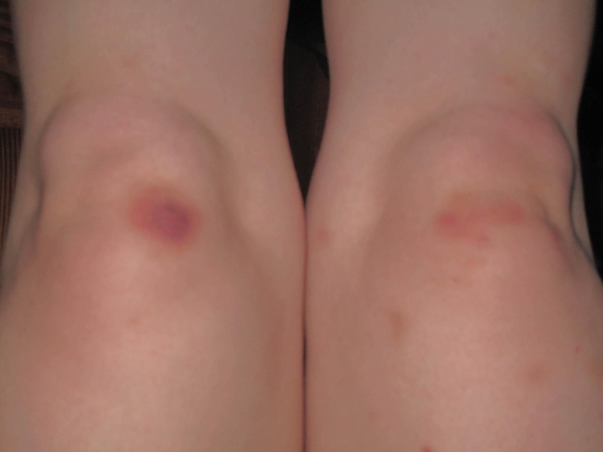 Bruised knees.